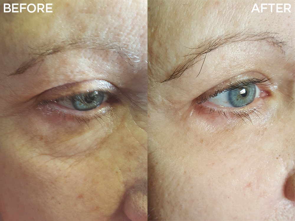 Instantly Ageless | Jeunesse Global